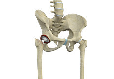 Correction of a Failed Hip Replacement