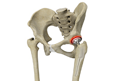 Correction of a Painful Hip Replacement