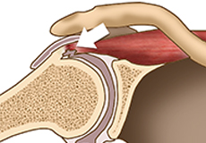 Internal Impingement of the Shoulder