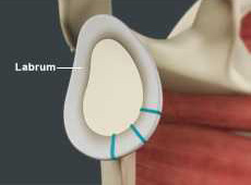 Shoulder Labrum Reconstruction